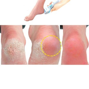 Foot Callus Remover Give You Confidence Showing Off Your Bare Feet