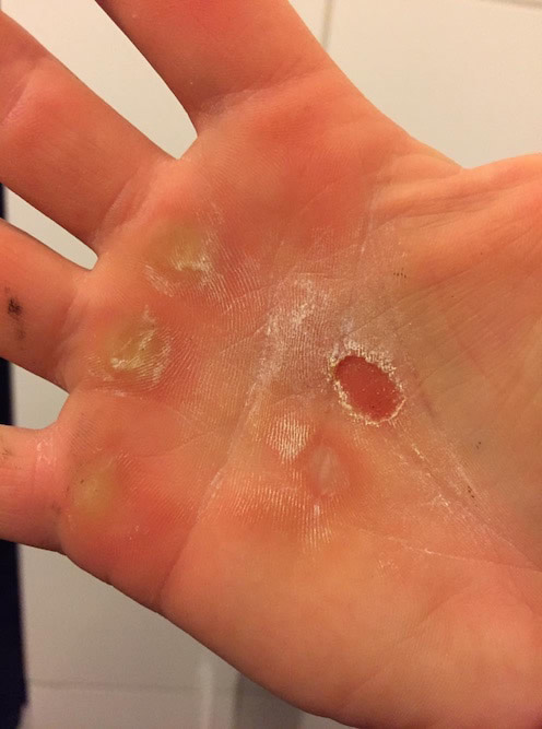 Ripped hands from trapeze