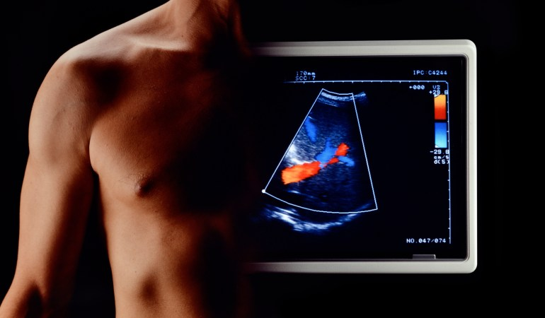 Photo istock by antoniotruzzi: Body of man fused with ultrasound screen