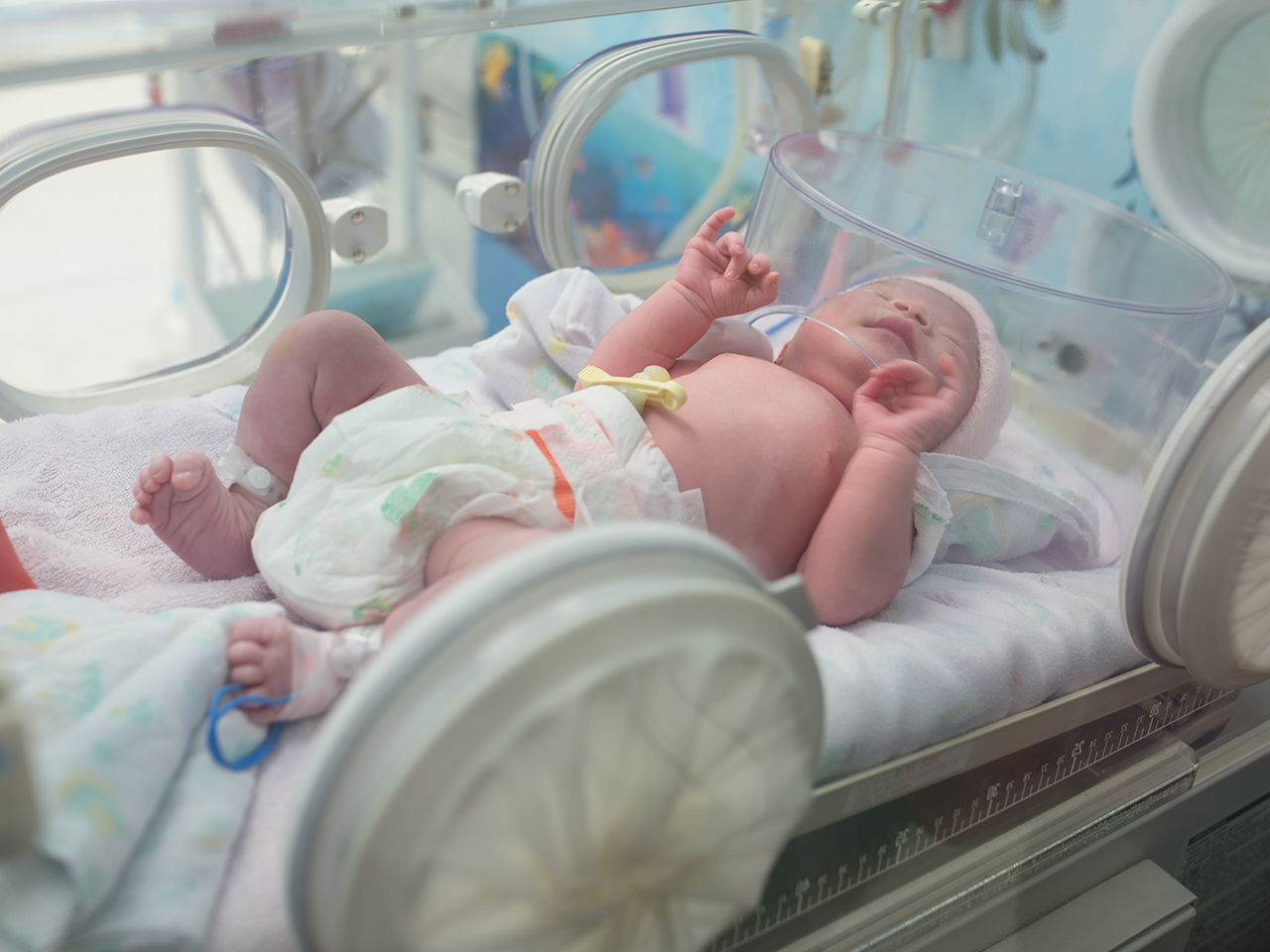 What You Should Know If You Have A Preterm Baby