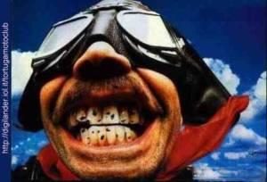 mosche_denti