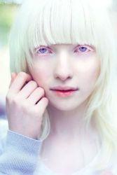 31082017: Le modelle dal colore della pelle particolare: Nastya Zhidkova (la russa albina)