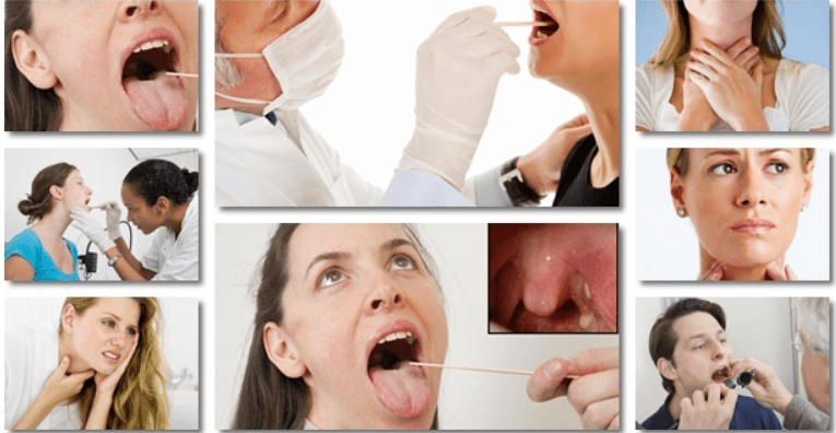 Are Tonsil Stones Good or Bad