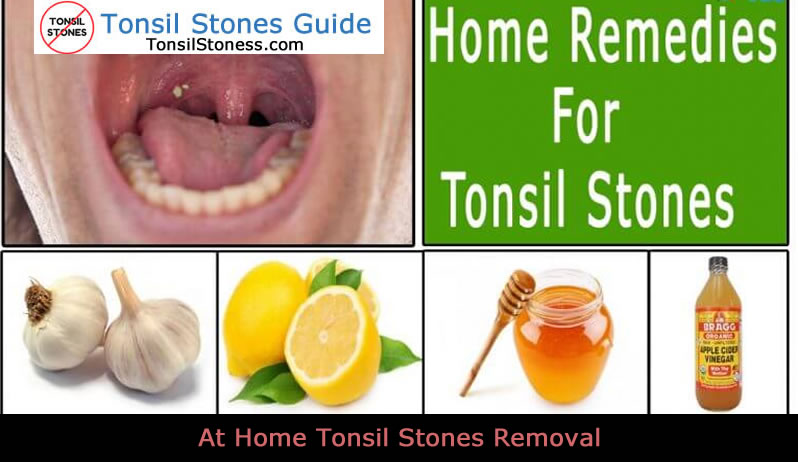 At Home Tonsil Stones Removal