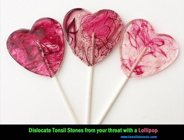 Dislocate Tonsil Stones Lollipop