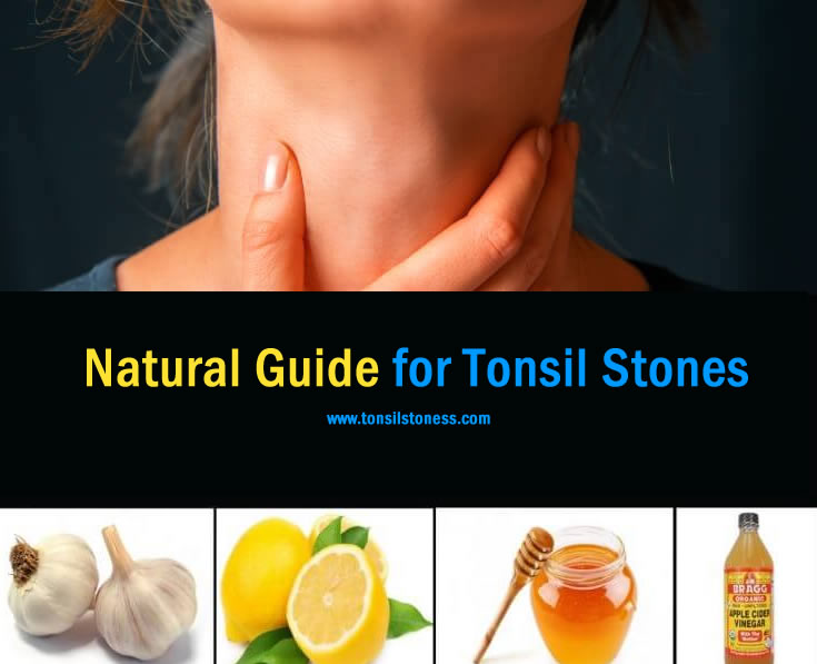 Natural Home Remedies to Cure Tonsil Stones [Top 7 Tips]