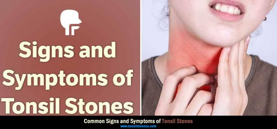 signs and symptoms of tonsil stones