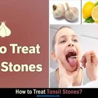 Tonsil Stones Removal Guide - Tonsil Stones Treatment