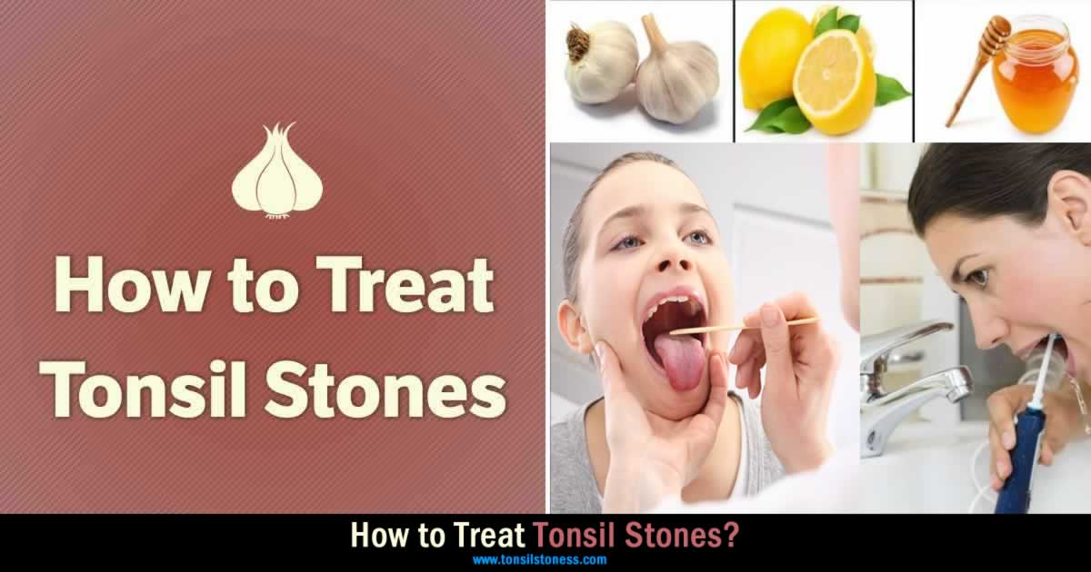 treat tonsil stones