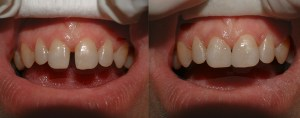 gaps-in-teeth-before-and-after