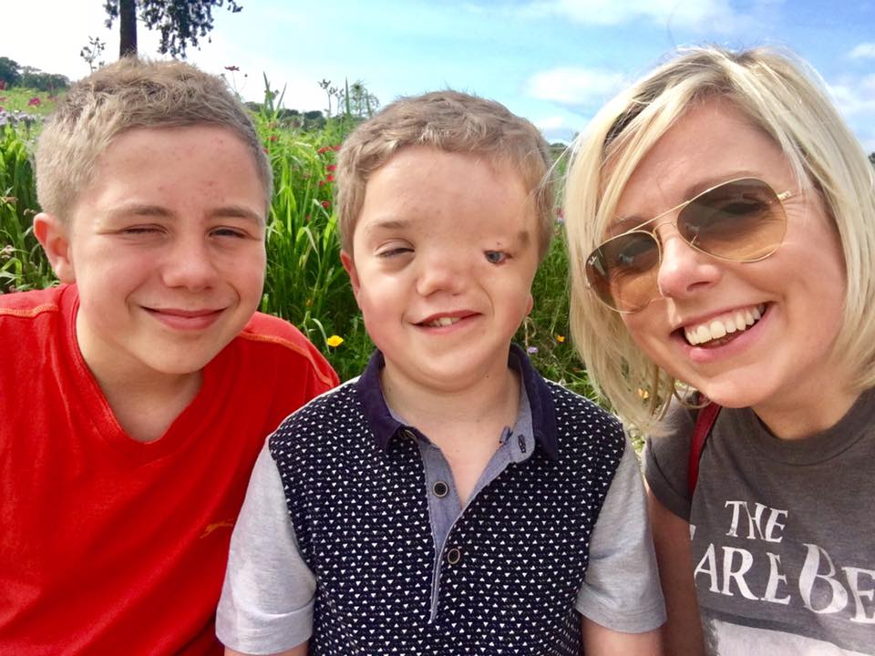 Charlie Beswick on life with Goldenhar syndrome, autism and anxiety and finding the joy in each day