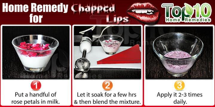 Chapped Lips Home Remedy Using Rose