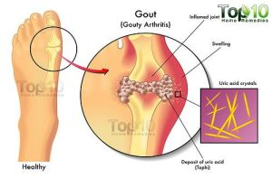 Home Remedies for Gout | Top 10 Home Remedies