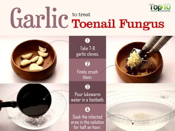 garlic for toenail fungus