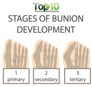Home Remedies for Bunions | Top 10 Home Remedies