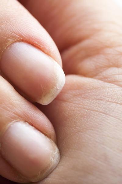 damages nails