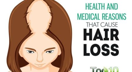 What is the genuine trigger of hair loss