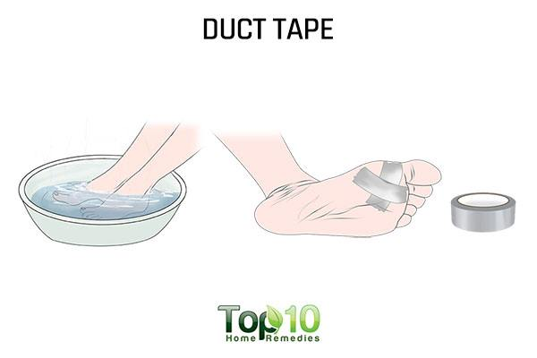 dect tape remedy for plantar warts