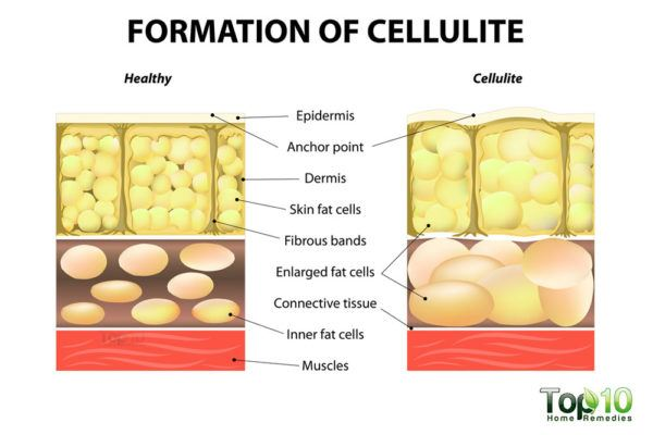 cellulite on skin diagram