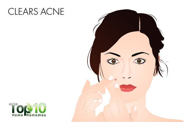 Use camphor to clear up your acne