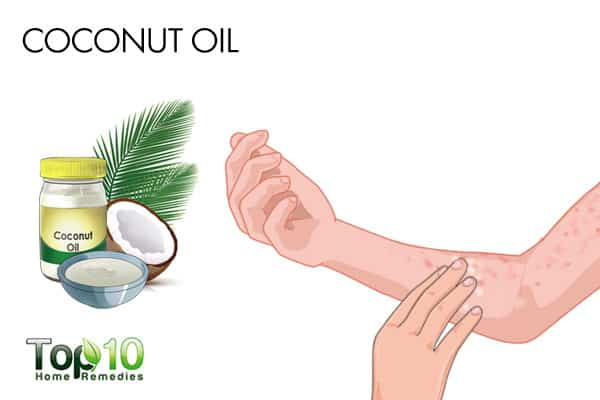 coconut oil to get rid of bumps on arms
