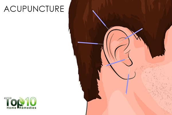 acupuncture to handle smoking relapse