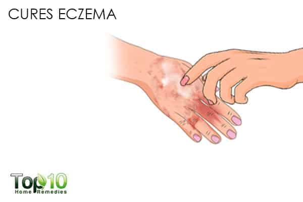 calamine lotion cures eczema