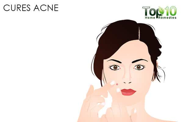 cure acne with chamomile for beauty purposes