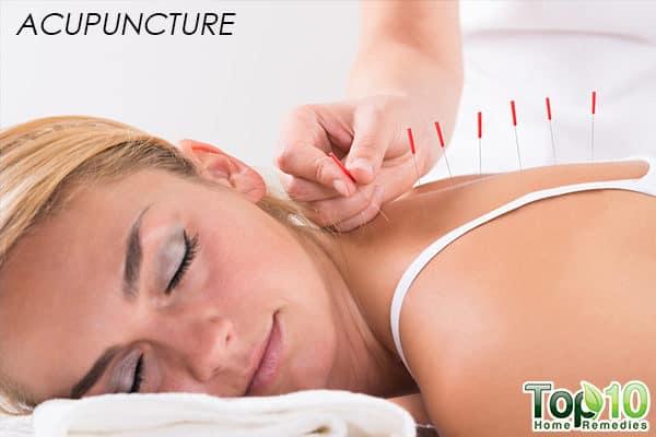 acupuncture for pregnancy backache