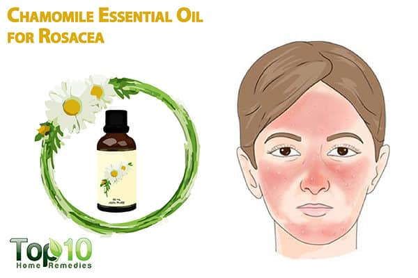 chamomile essential oil for rosacea