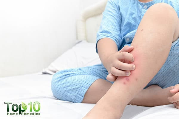 insect bites and rashes