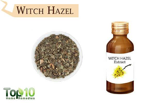 witch hazel for insect bites