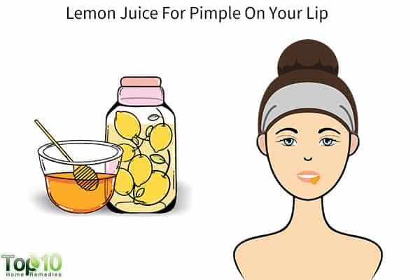 lemon juice for pimple on lips