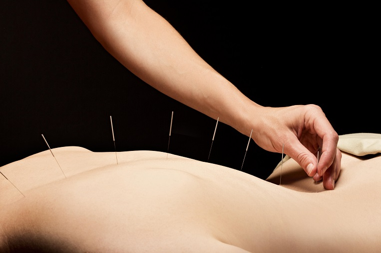 1. Acupuncture