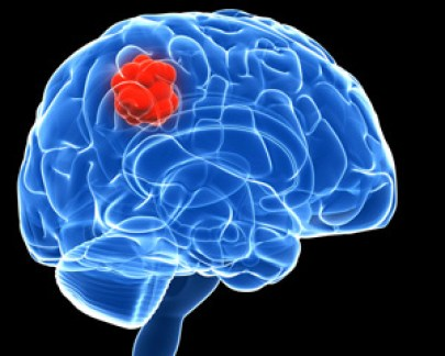 Image result for brain tumours