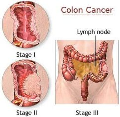 https://i1.wp.com/www.topnews.in/health/files/colon-cancer.jpg?resize=242%2C236