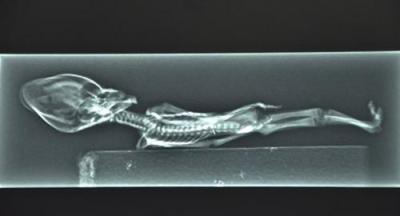 Стивен Грир уверяет, что на этом рентгеновском снимке - чилийская мумия.