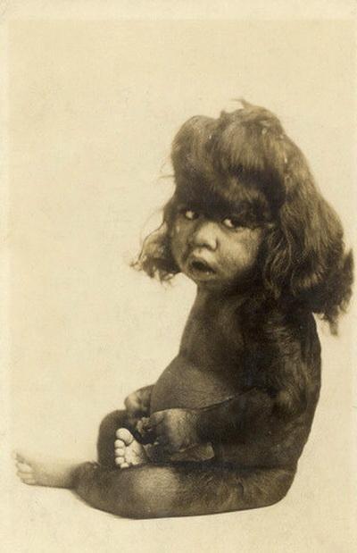 Фотографии людей из цирка уродов конца 19 века - TOPNews.RU