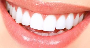 Top 10 Best Teeth Whitening Products in 2017