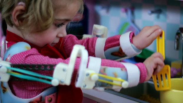 emma-robotic-exoskeleton