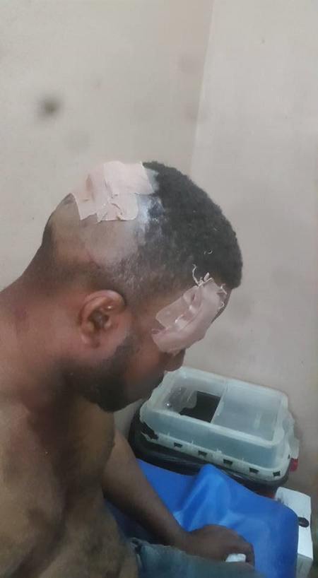 Thug Beat 2 - Thugs Beat Two Brothers To A Pulp Over Market Fee In Edo State (Photos)