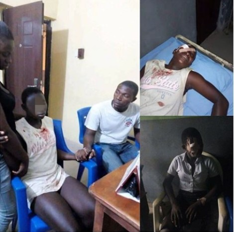 Classmate Stabs School Friend In The Eye For Refusing To Join Cult (Graphic Photos)