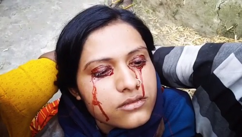 Meet The Beautiful Woman Who Sheds Blood From Her Eyes Instead Of Tears.(Photos)