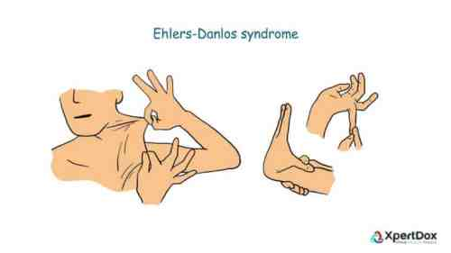Ehlers–Danlos syndromes