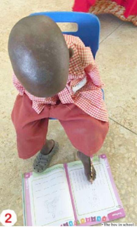 Abdullahi Umar Nigerian Boy Who Writes With His Toes