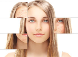 Acne and Acne Scar Revision