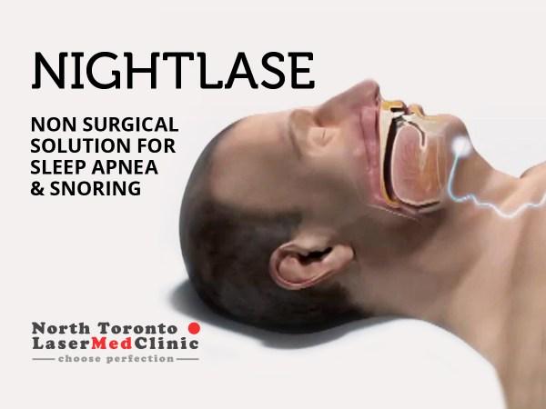 NightLase