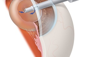 diagram of phaco tip removing cataract