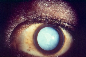 photo of mature or ripe cataract with white lens in pupil