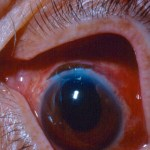 cataract surgery risks and wound leak